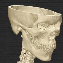 Skull 30