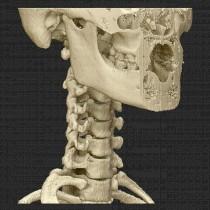 Spine 008