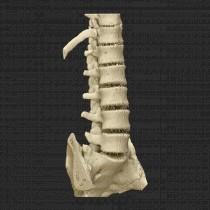 Spine 010