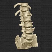 Spine 012
