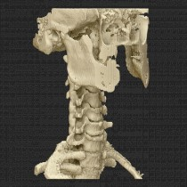 Spine 013