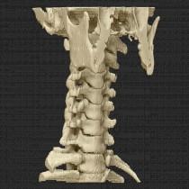 Spine 017